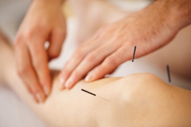acupuncture_knee